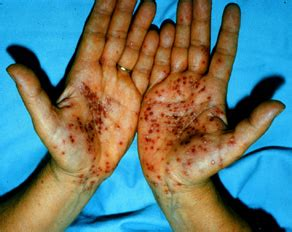 oprm-hand-foot-mouth-disease   College of Dentistry and