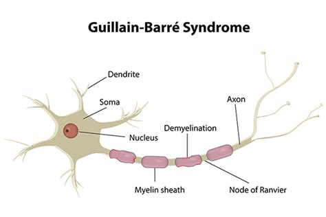 Ayurvedic Treatment for Guillain Barre Syndrome - Planet