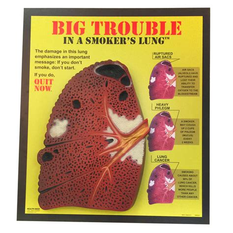 Big Trouble In A Smoker's Lung 3-D Display