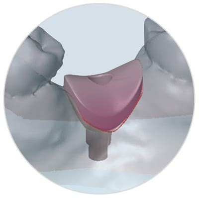 Custom Temporary Provisional and Tissue Former - Implant