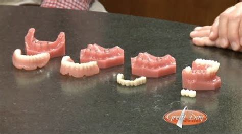 Pros and Cons of Mini Implants | Dental Implant Price Guide