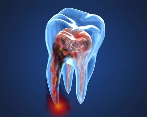 ROOT CANAL - Health Call