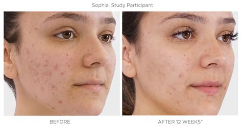 SPOTLESS Breakouts Control Acne Treatment for Teens