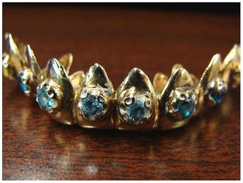 What the Heck are Dental Grillz? | HubPages
