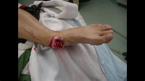 fracture dislocation of ankle - YouTube